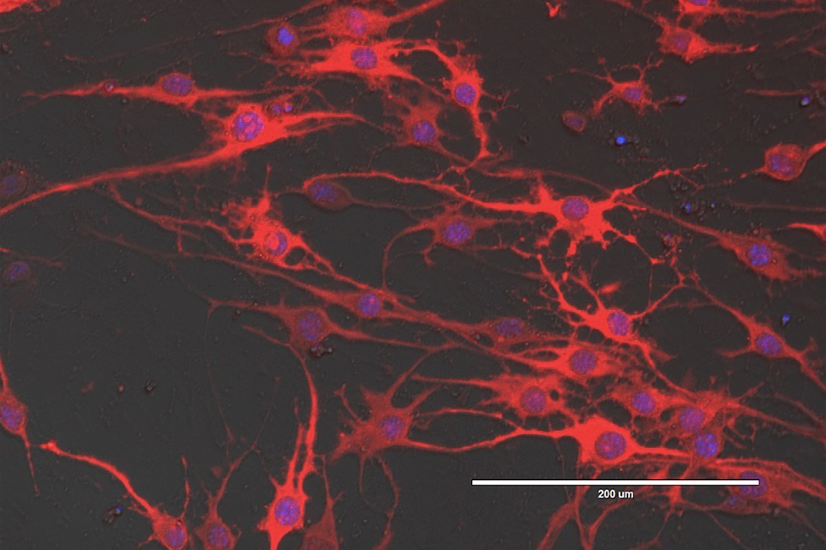 Neuronal cells induced from mouse embryonic fibroblasts.