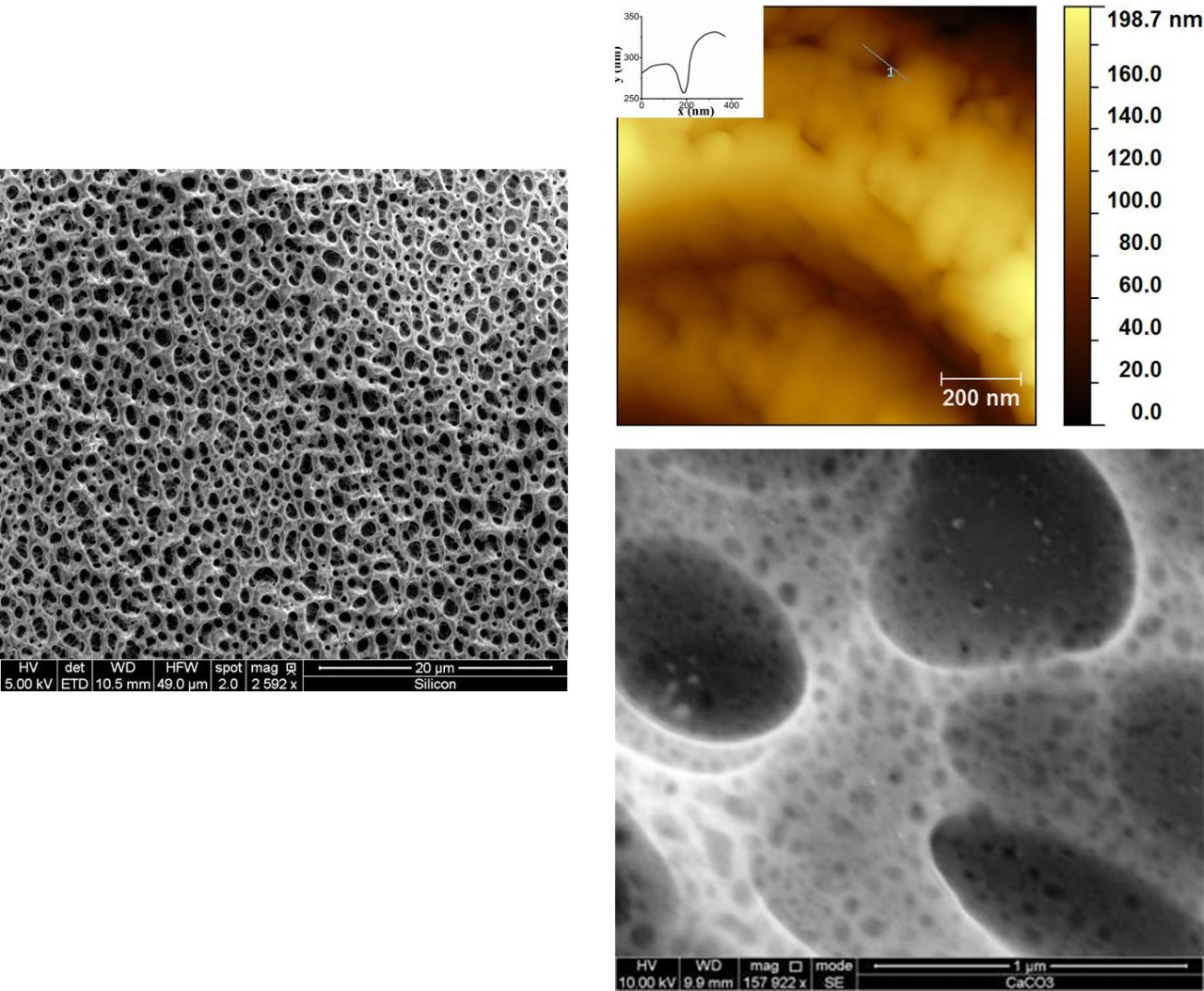 Micro- and nanopores of calcium carbonate scaffolds.