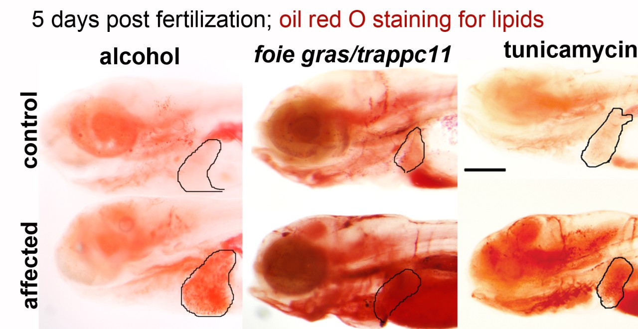 Five days post fertilization; oil red O staining for lipids.